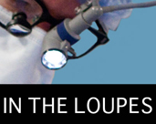 In the Loupes icon